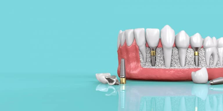Dental Implants Specials
