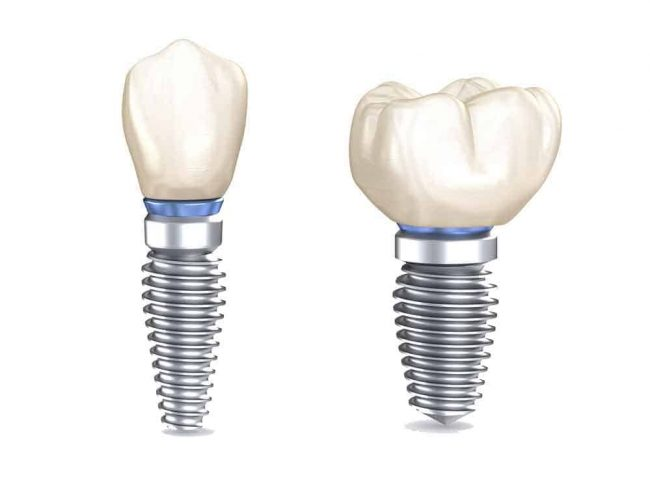 Dental Implants - Frequently Asked Questions - Best Dental