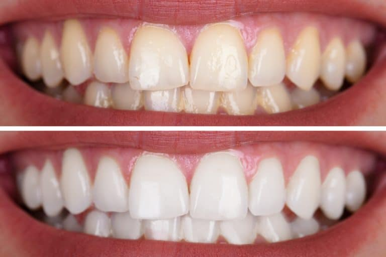 Teeth Whitening richmond tx