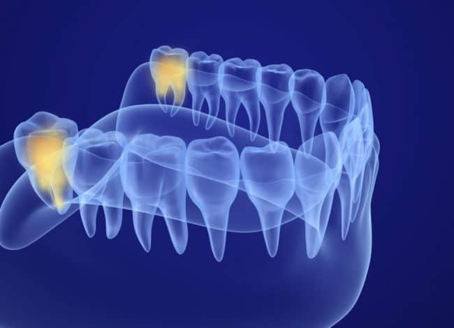 Wisdom Teeth Removal Cost - 2021