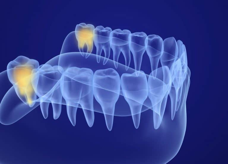wisdom teeth removal safety risks and complications