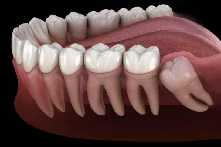 wisdom teeth removal safe risks and complications