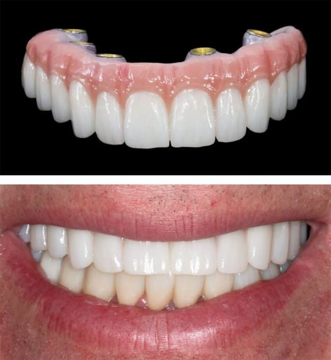 all on 4 dental implants cleaning