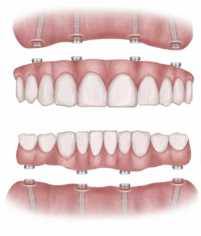All-On-4 VS All-On-6 Dental Implants