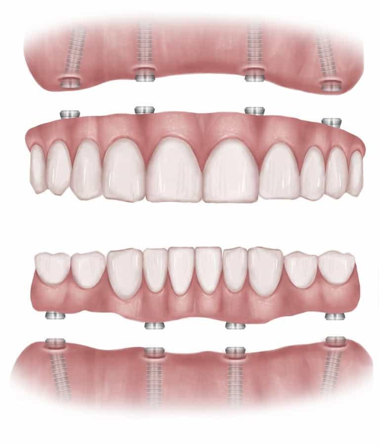 Dental Implants VS Dentures | Best Dental in Houston, TX