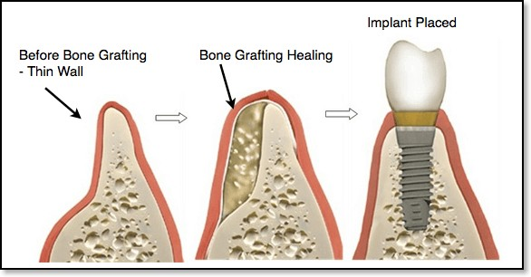 bone grafting in houston tx