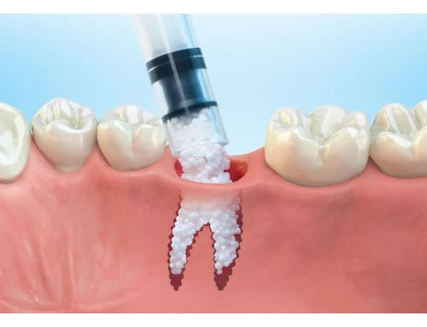 bone graft houston