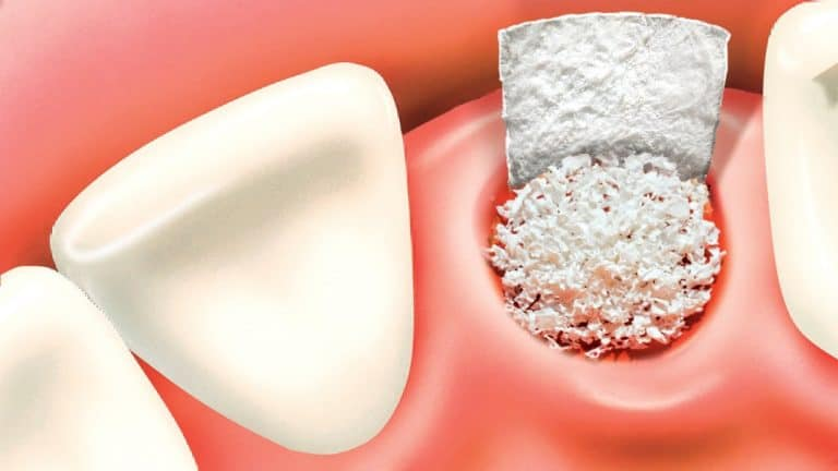 bone grafting houston tx