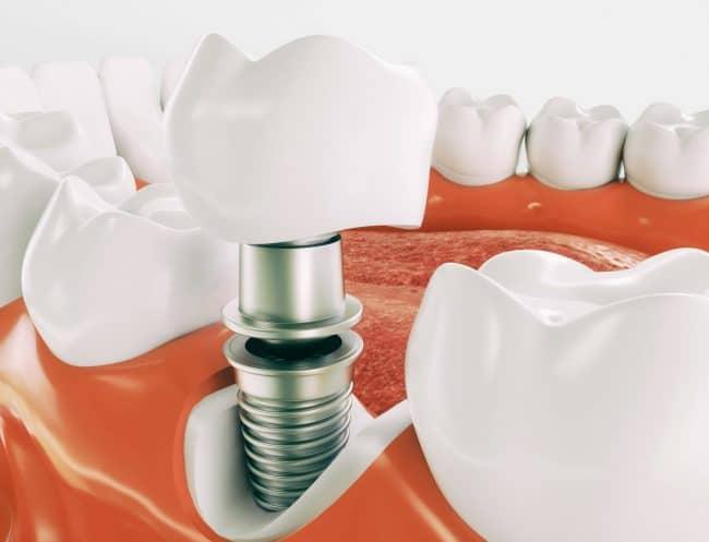 Dental Implants in Houston, Texas