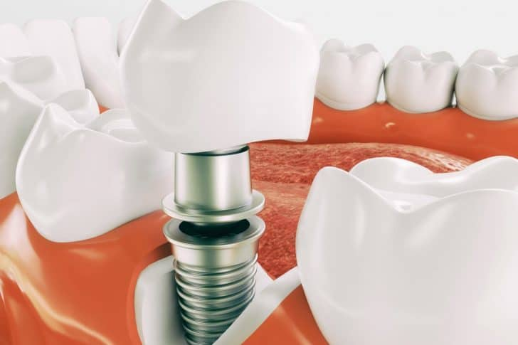Dental Implants in Houston, Texas