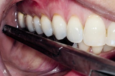 How To Make Your Dentures Fit Better | Denture Adjustment ...