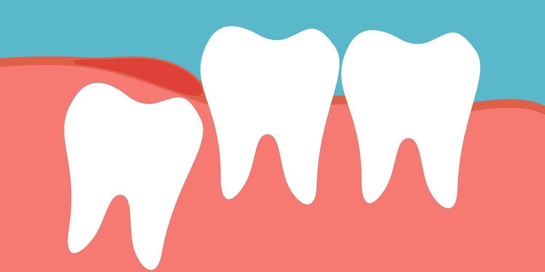 wisdom teeth are coming in - Best Dental