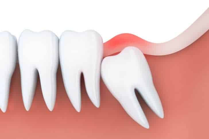 Can Wisdom Teeth Cause Bad Breath? | Best Dental in Houston, TX