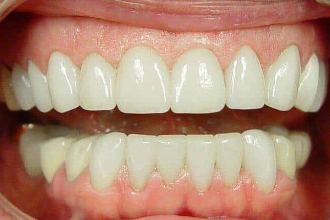 Diastema Closure | Best Dental in Houston, TX