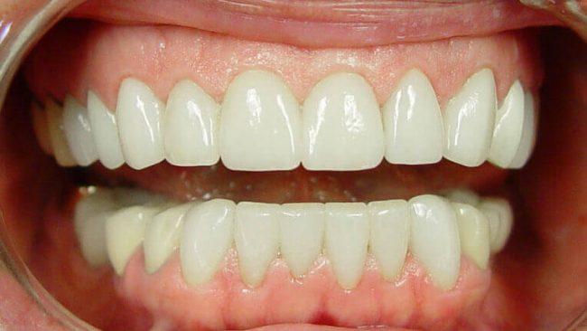 Diastema Closure | Best Dental in Houston, TX