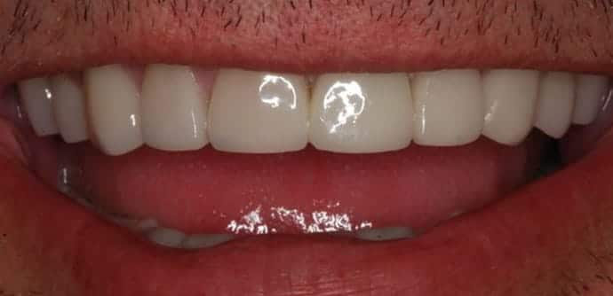 full mouth reconstruction in houston, tx