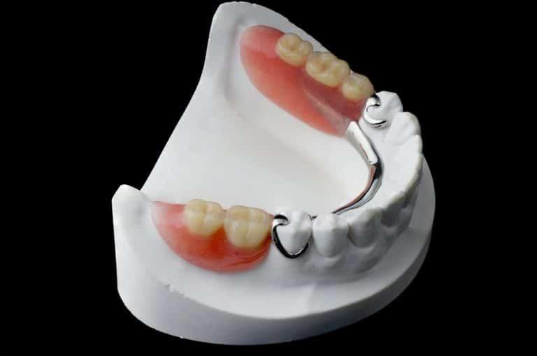 partial dentures | Best Dental in Houston, TX