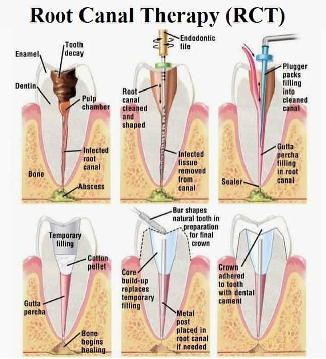root canal therapy katy tx
