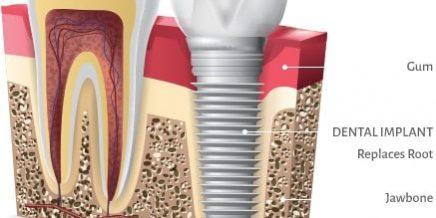 Smoking and Dental Implants - Best Dental - Dr. Jasmine Naderi