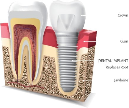 dental implants spring tx