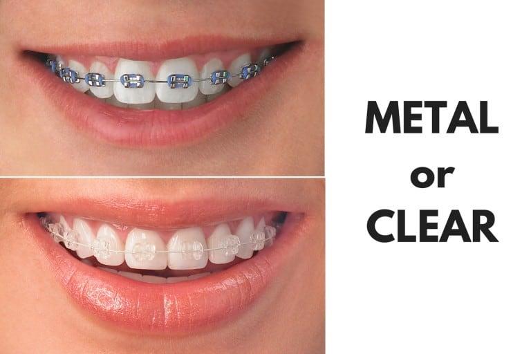 orthodontics houston, tx