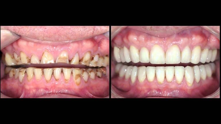 full mouth reconstruction houston