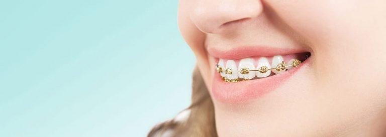 Adult Braces in Houston, TX | Best Dental