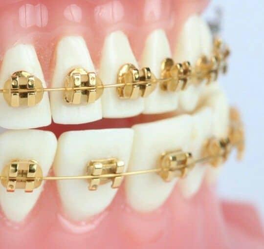 gold braces near me