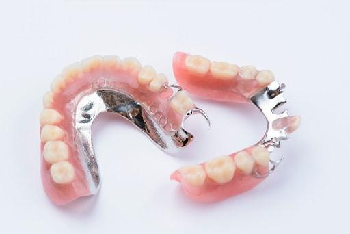 partial dentures houston