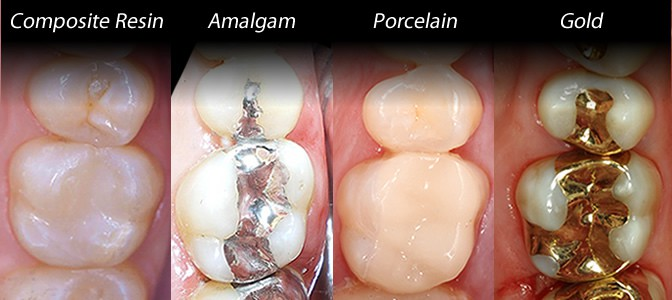 Porcelain Fillings in Houston, TX | Inlays and Onlays