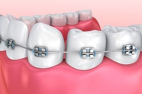 Braces and Wisdom Teeth | Best Dental in Houston, Tx