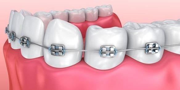 Braces and Wisdom Teeth | Best Dental in Houston, Tx