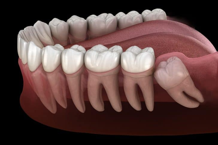 What Happens If You Don't Take Out Your Wisdom Teeth? - Best Dental in Houston