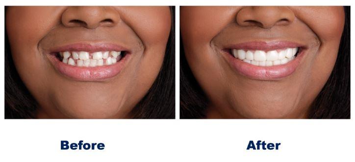 Snap On Smile Houston, TX | Best Dental