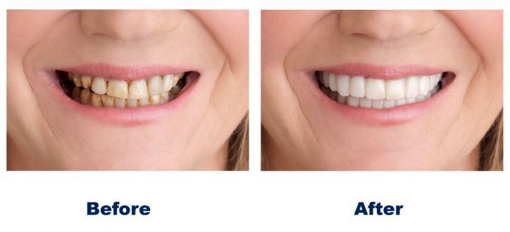 Snap On Smile | Best Dental in Houston, TX