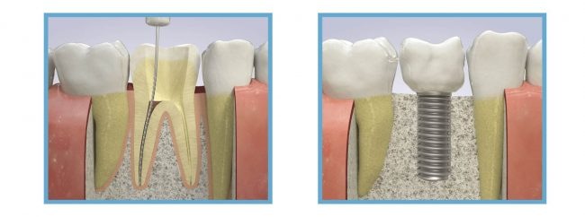 Root Canal Vs Implant | Best Dental in Houston, TX