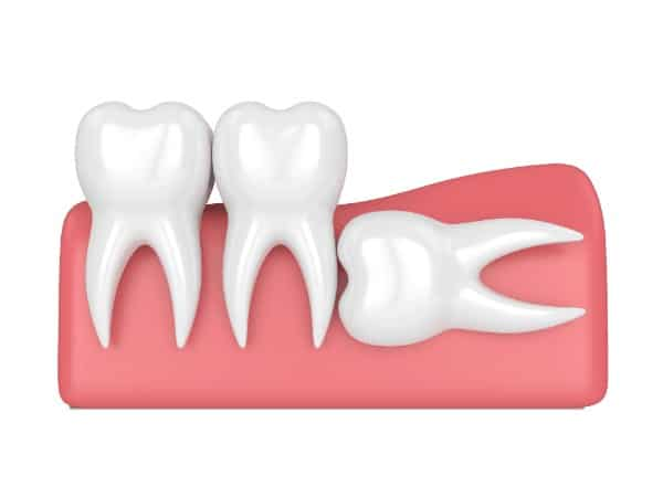 What Happens If You Don't Take Out Your Wisdom Teeth? | Best Dental in Houston
