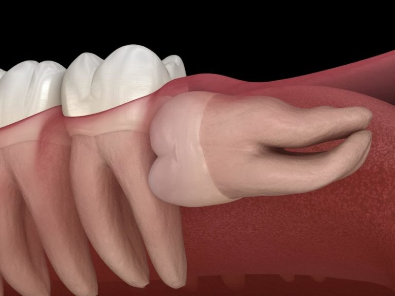 Numbness After Wisdom Teeth Removal - 6 Tips For Faster Healing
