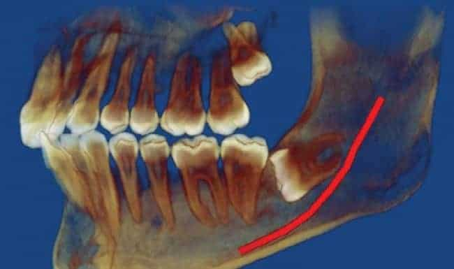 What Happens If You Don't Take Out Your Wisdom Teeth?