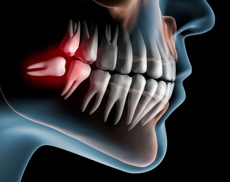 Wisdom tooth removal cost | Best Dental