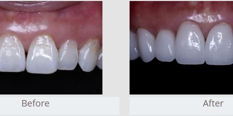 Natural Looking Veneers
