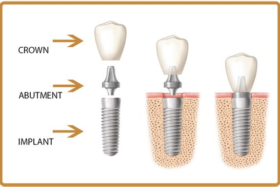 Are dental implants safe? - Best Dental in Houston, Texas