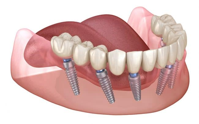 Stages of dental implant therapy - Best Dental in Houston, TX