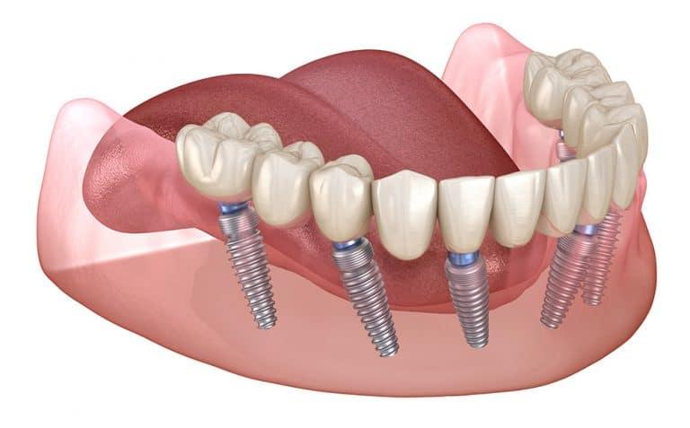 All-On-4 Dental Implants Houston, TX
