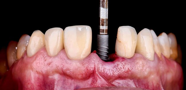 Can you get dental implants with bone loss? - Best Dental