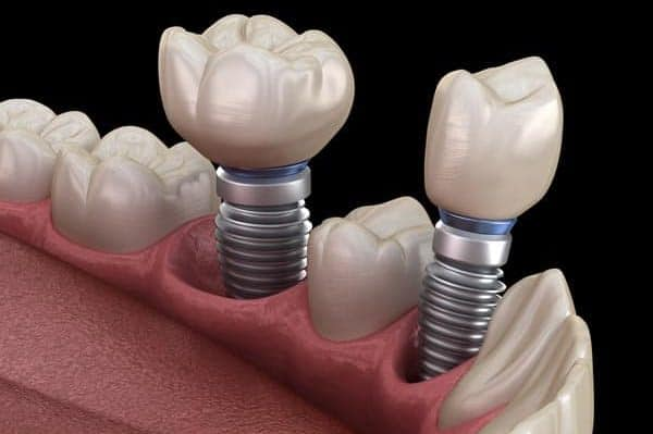 Crowns on Dental Implants | Best Dental in Houston, Texas