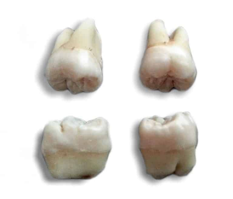Wisdom Teeth Removal in Houston Tx   Best Dental