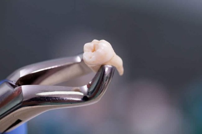 Does orajel work on a painful wisdom tooth? | Best Dental in Houston, TX