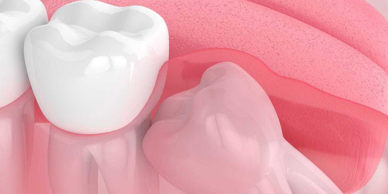 Can wisdom teeth cause bad breath?