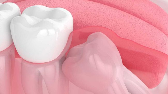 Can wisdom teeth cause bad breath?